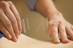 Terapia Fisica Punción Seca. Dry Needling. Clinica Fisioterapia Madrid Garabal